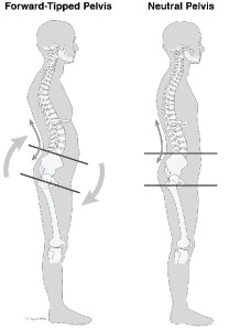 """correct pelvic posture (from """"The 7-Day Back Pain Cure"""")"""